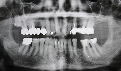 Imagerie dentaire maxillo-faciale